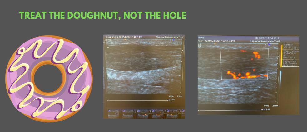 ultralyd av sene, senebetennelse